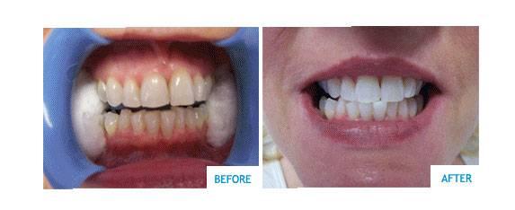 Teeth Whitening Near Me Cheap Teethwalls